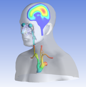 The ANSYS Model Patient demonstrates a selection of patient-specific computational modeling examples.  Shown here are drug delivery to the eye and nose, cardiovascular flow in the aorta, and the flow of cerebrospinal fluid in the brain.  This is but a small selection of the computational modeling examples that utilize patient anatomy to inform device development.  Acknowledgements: Brain and nasal geometries courtesy Materialise and aortic geometry courtesy Simpleware.